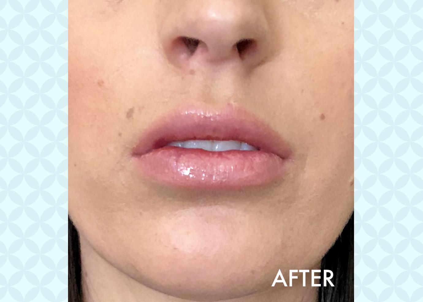 Botox/Fillers – Lewisville Laser & Aesthetics
