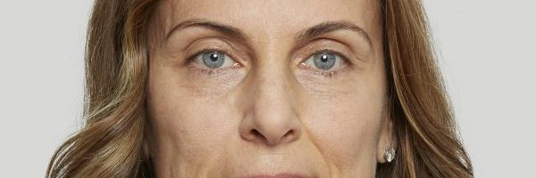 Sculptra – The Power of Subtle Rejuvenation!